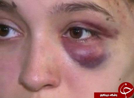 حمله وحشیانه اراذل به دختر نوجوان در روز روشن+تصاویر