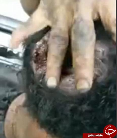 مغز این مرد زنده زنده خورده میشود + عکس