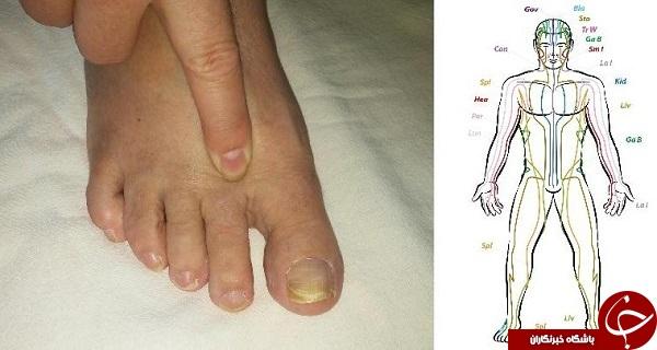 رفع درد و خستگی با فشار دادن انگشت پا+ عکس