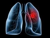 باشگاه خبرنگاران - نشانه های هشدار دهنده سرطان ریه که نسبت به آنها بی تفاوت هستیم