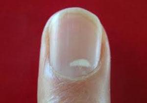 لکههای سفید روی ناخن زنگ خطری که به آن بیتوجه هستیم