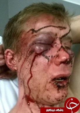 ضرب و شتم وحشیانه داماد سابق به خاطر یک سوء تفاهم+تصاویر