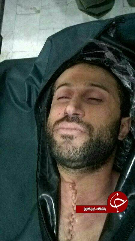 چهره و خواب آرام مهرداد اولادی در پزشک قانونی بعد از کالبدشکافی + عکس