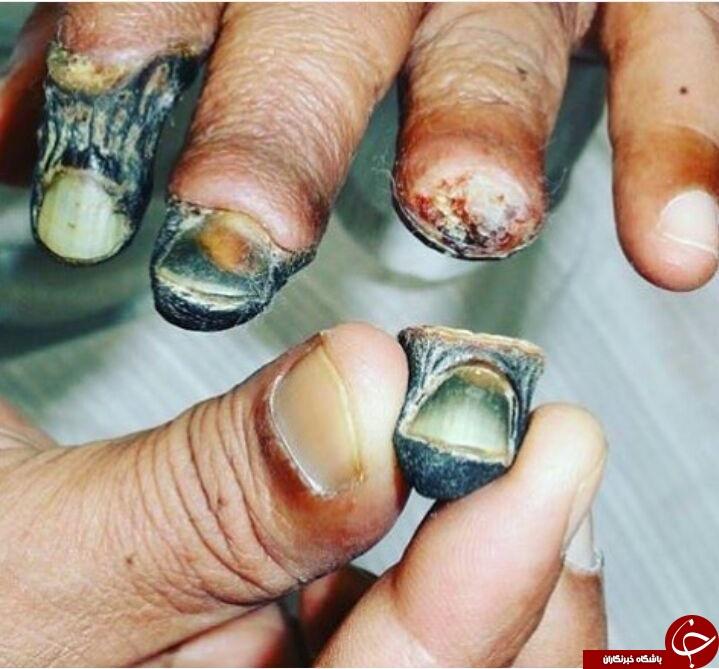 تصویری هولناک از کنده شدن انگشتان دست بر اثر قانقاریا (+18)