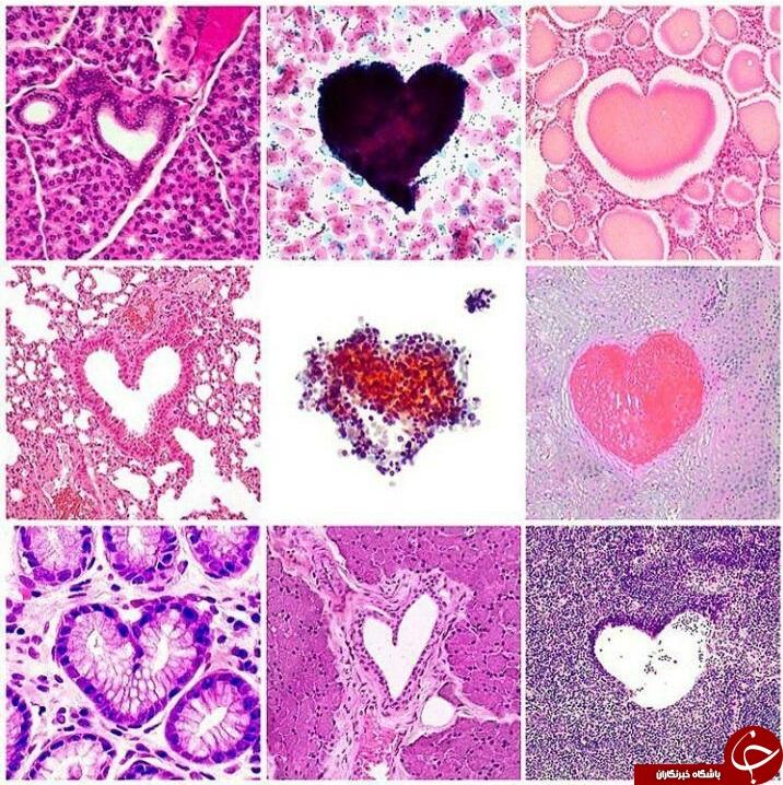 تصاویر خیره کننده از سلول های بدن در زیر میکروسکوپ