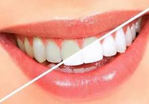 سادهترین روشهای خانگی برای سفید کردن دندانها