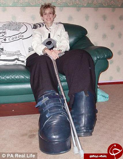 زنی که مجبور شد به خاطر بزرگ بودن پایش، آن را قطع کند + تصاویر