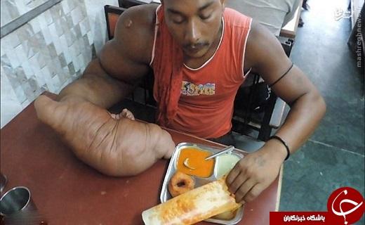 عکس/ مردی با دست ۲۰ کیلویی