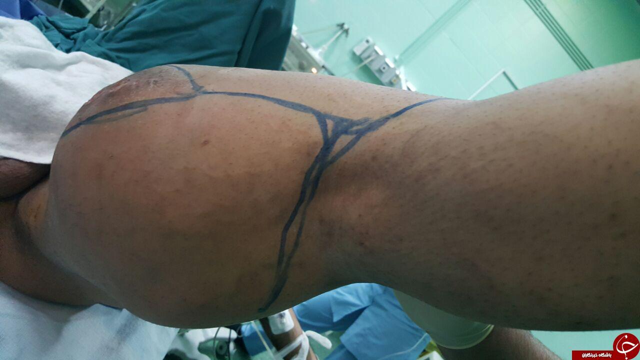 خارج کردن تومور ۸ کیلویی از پای جوان مازندرانی + تصاویر