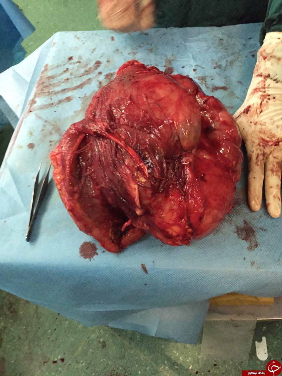 تومور, تومور خطرناک, عمل جراحی تومور, تومور در دست, عکس تومور خطرناک, عکس تومور خوش خیم, عکس تومور بد خیم, تومور پا, تومور مغز
