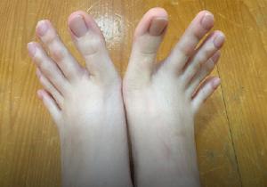 تصاویر حیرت انگیز از پاهای یک دختر تایوانی