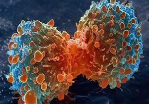 سرطان و انسداد روده بزرگ قابل درمان شد