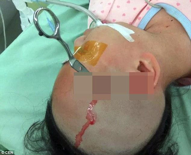 پدر بیرحم قیچی را در سر دختر 10 سالهاش فرو کرد+تصاویر
