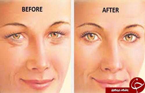 چهار روش درمان افتادگی پلک