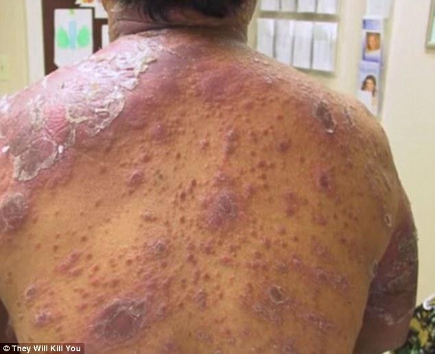 10 بیماری وحشتناک جهان/ از باکتری چشم تا میکروبی که استخوان می خورد