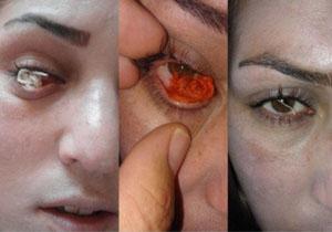 زنی که چشمانش نخ تولید میکرد حاضر به معاینه تخصصی نشد