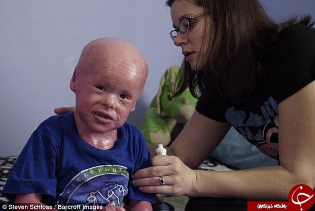 پسربچه ای که برای زنده ماندن هر روز باید پوستش کنده شود+ تصاویر