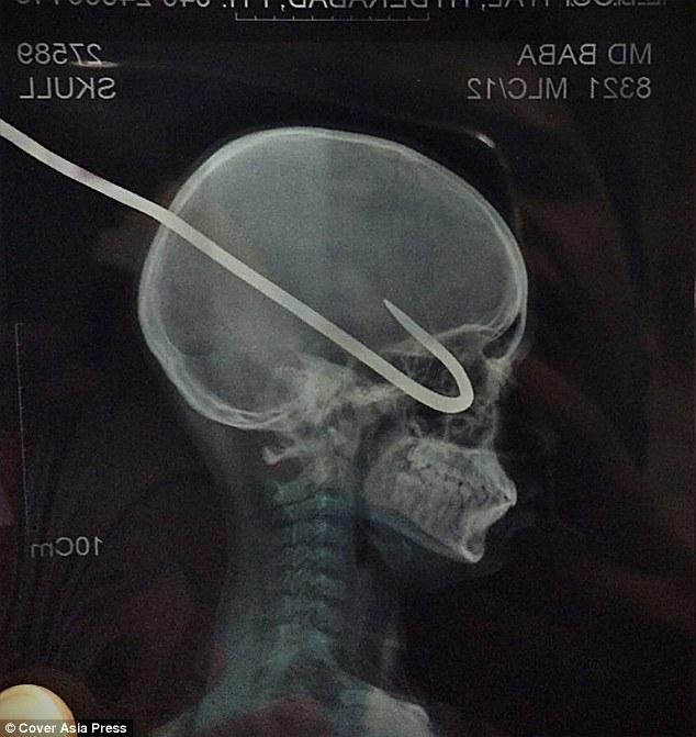 جراحی موفقیت آمیز/ خروج قلاب از چشم و مغز پسر بازیگوش هندی+ تصاویر+18