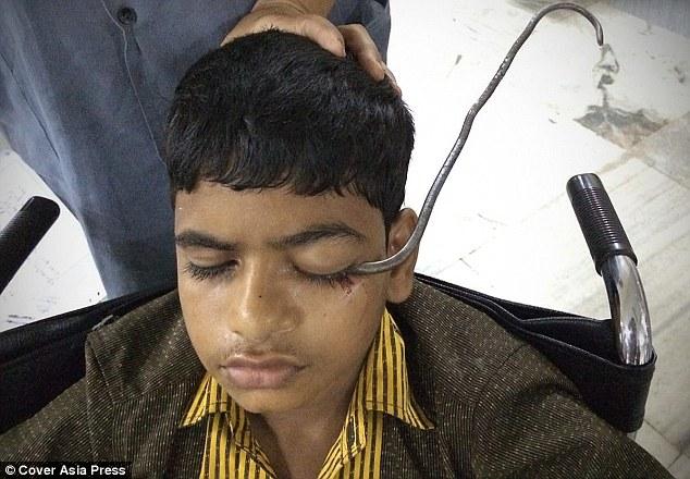 جراحی موفقیتآمیز/ خروج قلاب از چشم و مغز پسر بازیگوش هندی+ تصاویر+18