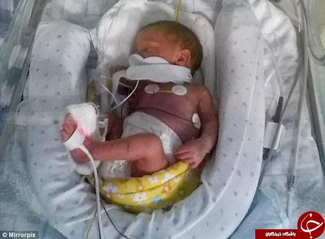 کودکی که با معجزه متولد شد +عکس