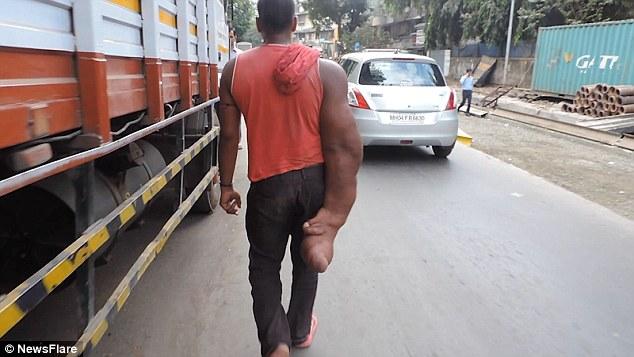 مردی با بازوی 20 کیلویی