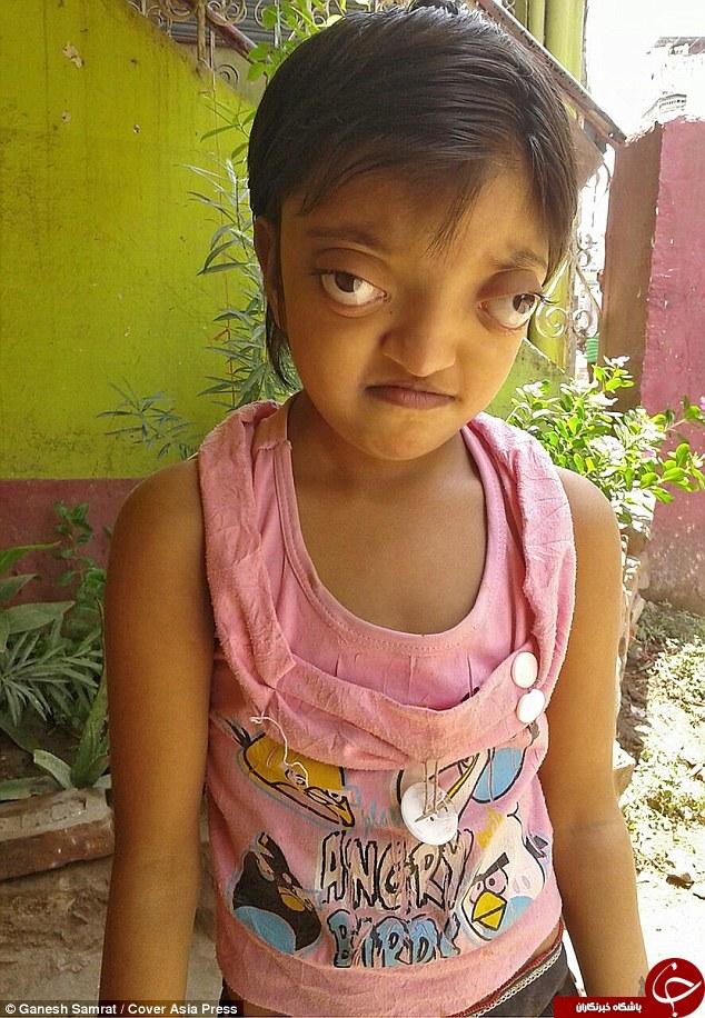 دختری که از چشمان خود می ترسد+تصاویر