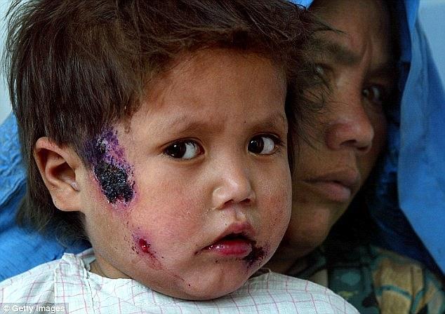 شیوع بیماری پوستی از مناطق تحت اشغال داعش به دیگر نقاط منطقه+ تصاویر
