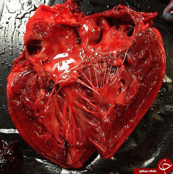 قلب بعد از مردن چه شکلی است؟+ تصاویر