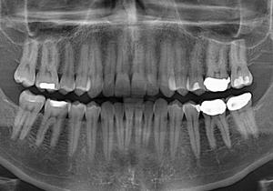عصبکشی دندان خاطره میشود