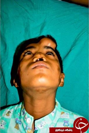 عجیبترین پیوند بینی روی صورت یک نوجوان+تصاویر