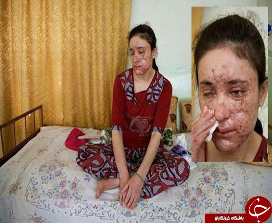 راز های ناگفته دختر فراری از همخوابی های وحشیانه داعش+عکس