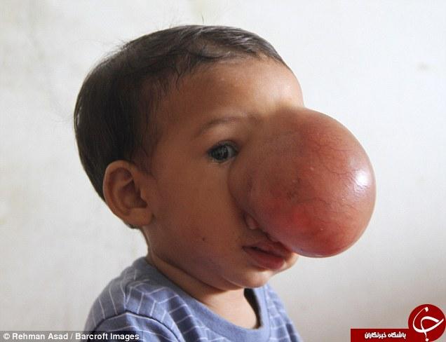 تومور عجیبی که نصف صورت یک دختر را پوشانده است+تصاویر