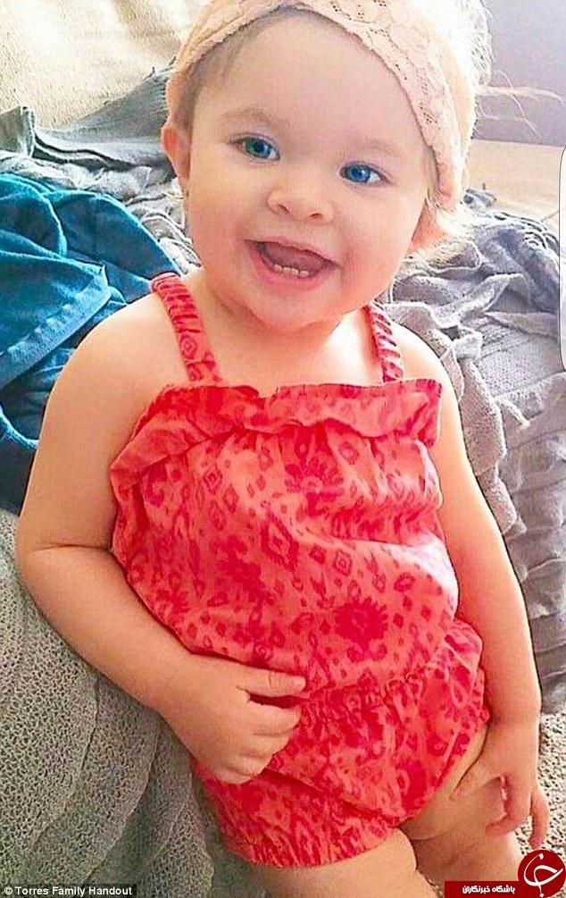 اشتباه پزشکی کودک 14 ماهه را به کشتن داد+تصاویر