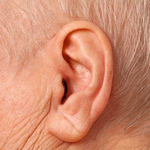 ظاهر گوش چه حقایقی را در مورد سلامت انسان بازگو میکند؟