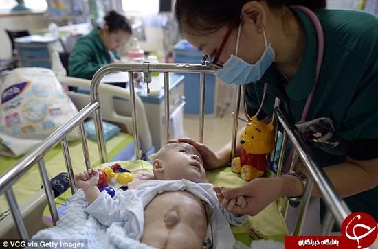 قلب این کودک خارج از قفسهسینهاش قرار گرفته است +تصاویر