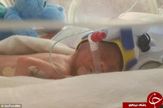 زنده ماندن عجیب بچه 800 گرمی به دنیا آمده +تصاویر