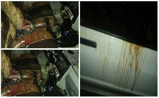 اسید پاشی در زابل یک مجروح برجای گذاشت+تصاویر