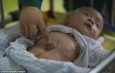 باشگاه خبرنگاران - پیدا کردن نوزاد سر راهی با قلبی خارج از سینه+تصاویر