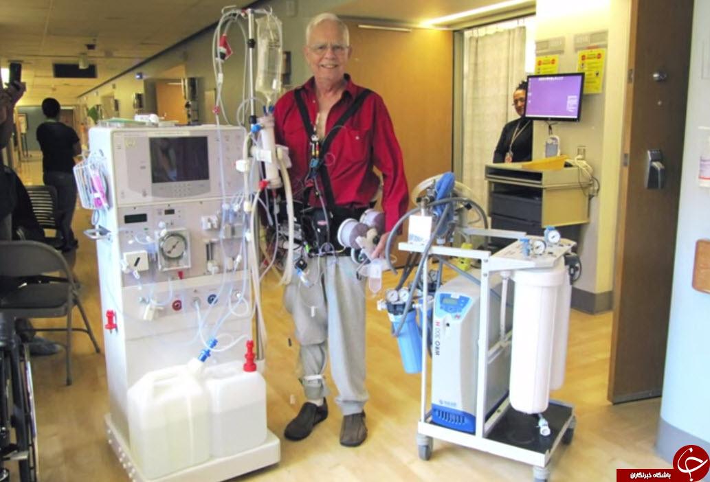 کلیه های مصنوعی پوشیدنی، نجات جان بیماران دیالیزی + تصاویر