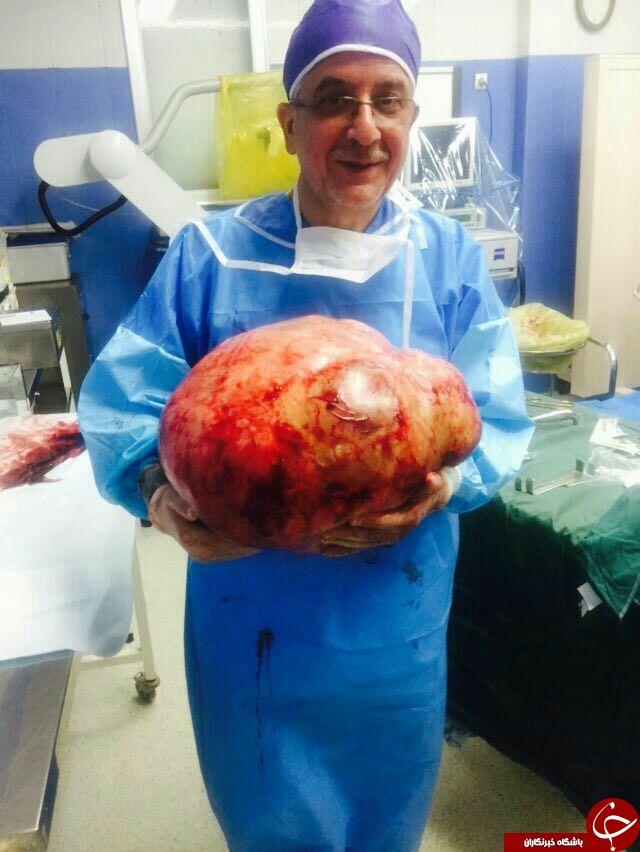 خروج تومور 20 کیلویی از شکم یک بیمار+تصویر