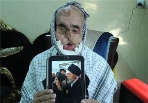 حاج رجب به جمع یاران شهیدش پیوست + دانلود مستند آقا رجب جذام ندارد!
