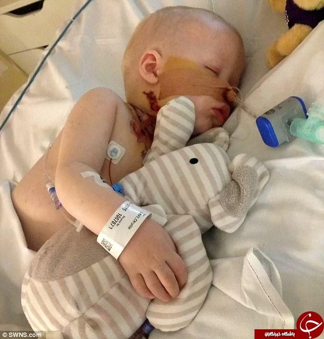 وحشتناکترین باکتری جهان، گردن کودکی را زنده زنده خورد+تصاویر (18+)