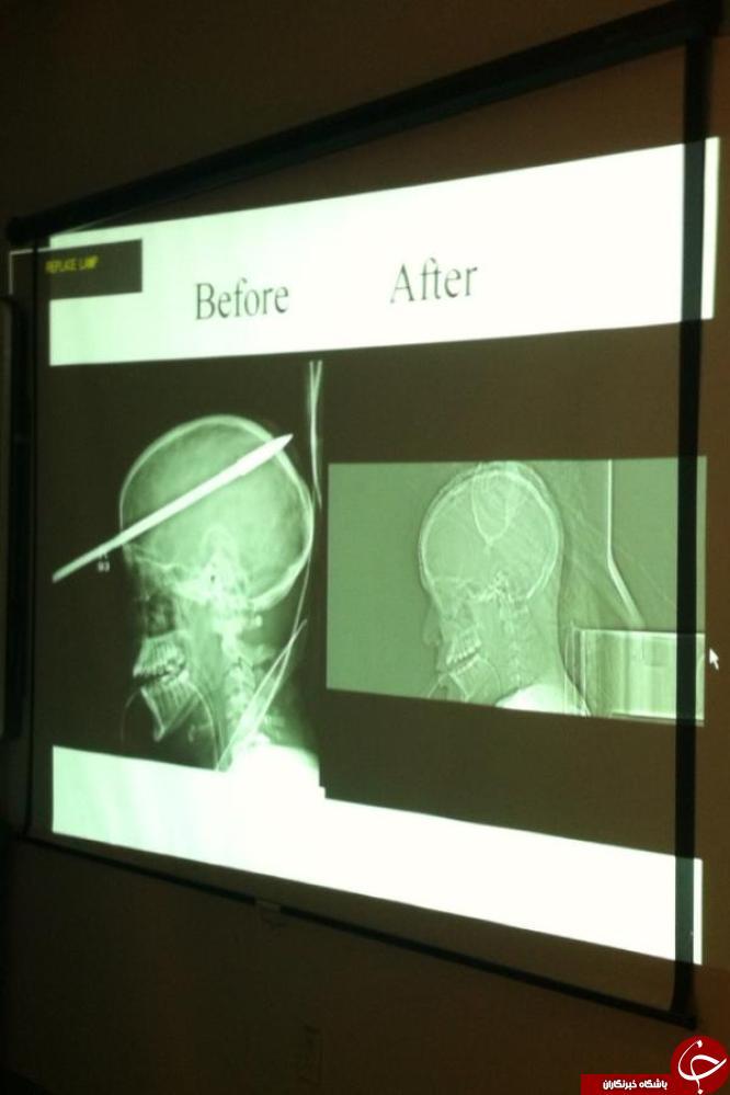 وحشتناک ترین عکس های رادیولوژی از بدن انسان+تصاویر