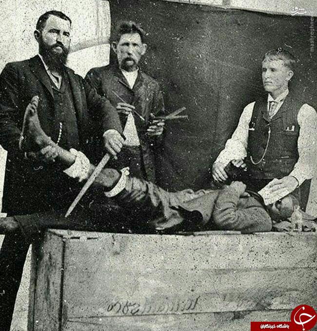 بیهوش کردن بیماران در ۱۲۰ سال پیش+عکس