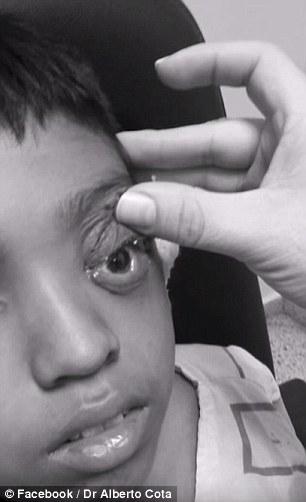 متخصص چشم پزشکی عکس جراحی درمان گل مژه در طب سنتی درمان گل مژه پماد گل مژه