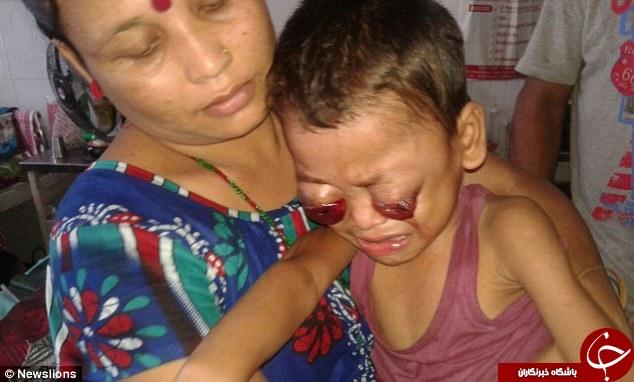 بیماری وحشتناک پسربچه هندی؛ چشمان این کودک از حدقه بیرون زده است +تصاویر