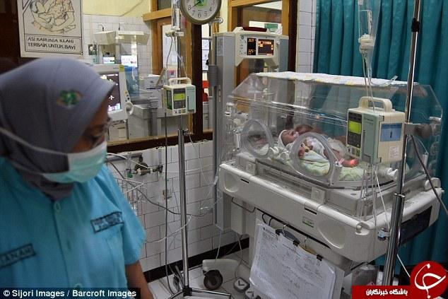 تولد نادر یک نوزاد 2 سر در اندونزی+تصاویر