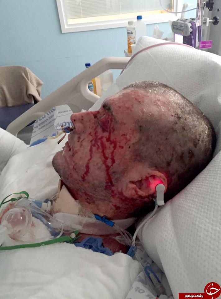 وحشتناکترین آلرژی جهان؛ این بیمار زنده زنده سوخت+ تصاویر (18+)