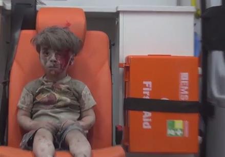 زخمهای کودک سوری بخشی از جنگ وحشتآور حلب+ تصاویر