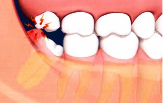 ماجرای دردسرهای یک دندان، وقتی پای عقل در میان است/ رمزگشایی از ماهیت دندان عقل